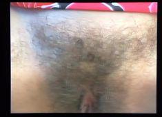 Hairy explanation